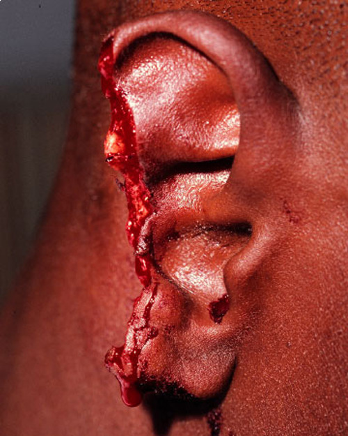 boobscupcakesnweed:  evander holyfield's ear after mike tyson bit it off in 1997  OMGWHATLOL i mean no