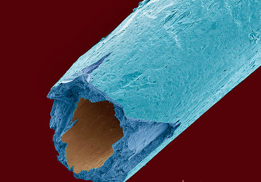 False-coloured SEM image of a human osteoporotic proximal phalange. Image Credit: Science Photo Library.