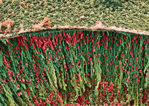 fuckyeahmolecularbiology:  Coloured scanning electron micrograph (SEM) of neurons (nerve cells) in the corpus striatum of a foetal brain. Each neuron consists of a cell body (red) surrounded by many extensions called dendrites. Dendrites collect information from other neurons or from sensory cells. Each neuron also has one process called an axon, which passes information to other neurons. The corpus striatum, which forms part of the basal ganglia deep in the cerebral hemispheres, is involved in the control of posture and movement. Image Source: Science Photo Library.  The colors in this image make neurons look like a garden of flowers!