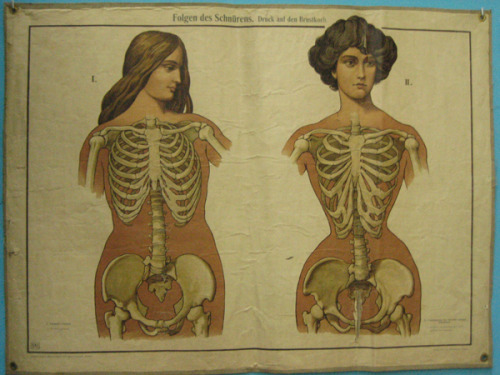 youticklemytralala:  the effects of corsetry (taken from google)