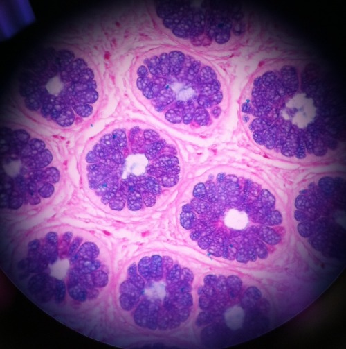 A microscopic section of a colon that I stained during a Histopathology practical class in college.(Stained with PAS/AB, and taken with my iPhone through a microscope at 400x magnification)