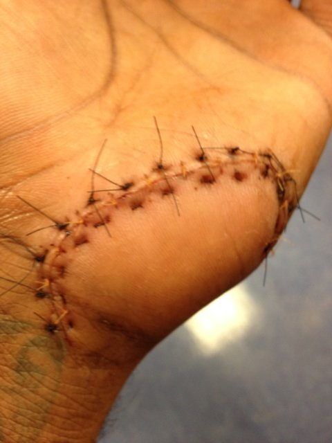 Amare's hand still looks bad, not even worth playing in game 4 smh