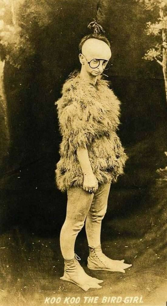 Koo Koo the Bird Girl was born Minnie Woolsey in 1880.  She suffered from a rare skeletal disorder called Virchow-Seckel syndrome, which caused her to have a very short stature, a small head, a narrow birdlike face with a beak-like nose, large slanted eyes, a receding jaw, large ears, and mild mental retardation.  She was also bald, toothless, and either completely blind or very short sighted.