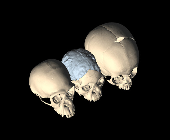 "deconversionmovement:  Anthropologist finds explanation for hominin brain evolution in famous fossil (Phys.org) — One of the world's most important fossils has a story to tell about the brain evolution of modern humans and their ancestors, according to Florida State University evolutionary anthropologist Dean Falk. The Taung fossil — the first australopithecine ever discovered — has two significant features that were analyzed by Falk and a group of anthropological researchers. Their findings, which suggest brain evolution was a result of a complex set of interrelated dynamics in childbirth among new bipeds, were published May 7 in the Proceedings of the National Academy of Sciences. ""These findings are significant because they provide a highly plausible explanation as to why the hominin brain might grow larger and more complex,"" Falk said. Continue Reading"