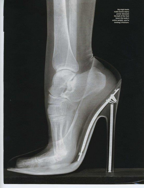 odddd:  xray of a foot in heels