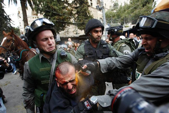 "#Palestine #Humanrights "" Israeli border police officers use pepper spray as they detain an injured Palestinian protester during clashes outside Jerusalem's Old City — with Eleazar Y'shua. Apr 1"