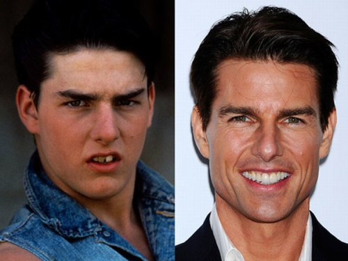 then-n-now:  Tom Cruise