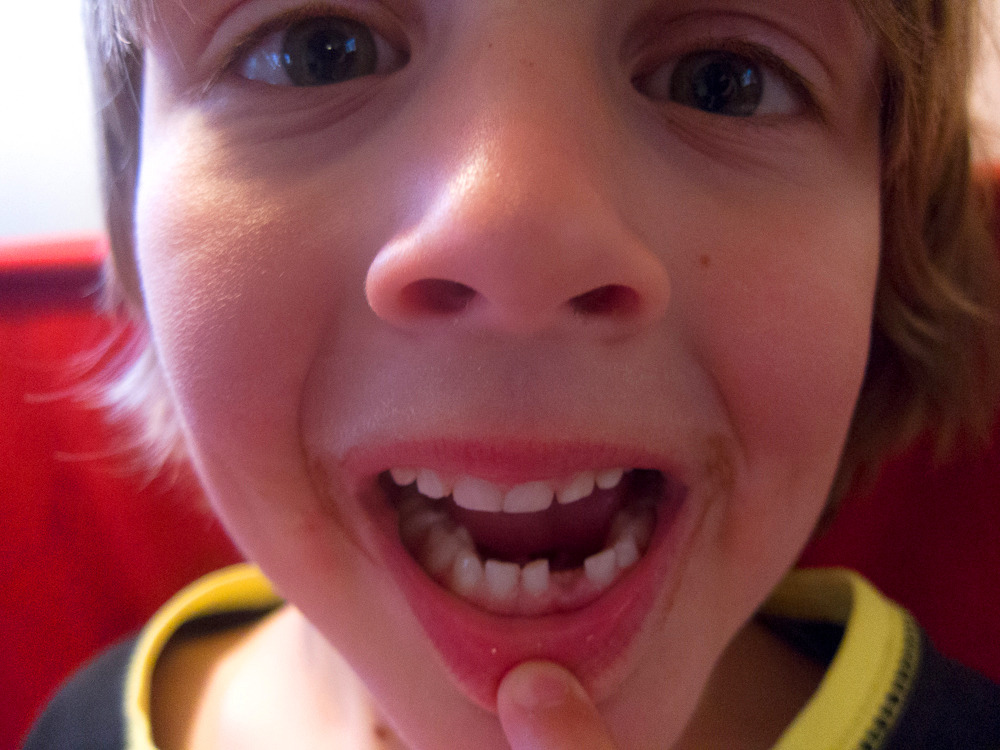 Jasper's First Tooth falls out!