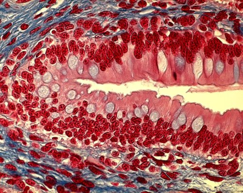 medicalschool:  Columnar Cells