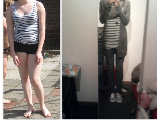 fithealthylife4you:  Do u think i had an eating disorder on the right picture or on the left? BOTH! It doesn't matter you're fat or thin. You can have a eating disorder in both situations. On the right picture i was thinking of food 24/7, but i was thinking 24/7 about food on the left picture too. An eating disorder isn't about how much you weigh, it's about what's happening in your head.
