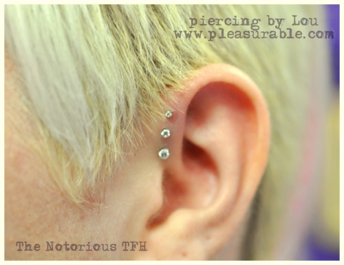 healed Triple forward helix. All titanium jewelry by Neometal.
