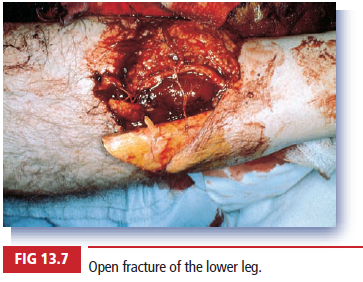 Open fracture of the lower leg