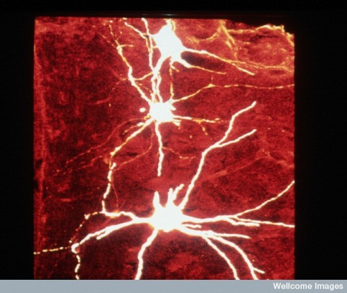 Motor neurons in the spinal cord of a rat Find and use this image on Wellcome Images.