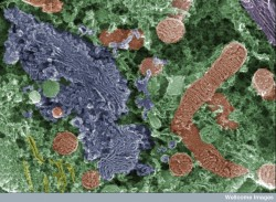 False colour scanning electron micrograph showing cellular organelles present in a spiral ganglion neuron. The structures shown in red/orange are mitochondria - these are the energy production units of the cell. The structure in blue is the golgi apparatus, which is responsible for packaging and secreating lipids and proteins for transport around the cell. These organelles are found in all eukaryotic (plant and animal) cells. This particular image shows organelles in a spiral ganglion neuron. This is a specialist nerve cell of the inner ear that transmits sound signals from the cochlea to the brain. Find and use this image on Wellcome Images.