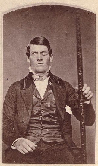 "Phineas Gage, the railroad worker who had a metre-long iron rod propelled straight through his head at high speed in an explosion. Gage famously survived this horrific accident, but underwent dramatic personality changes afterwards. Photograph taken in 1848. Gage is said to have undergone major personality changes following his accident, becoming quick-tempered and foul-mouthed and behaving sexually inappropriately. In a subsequent report, published 20 years after the accident, Harlow described the changes thus:  His contractors, who regarded him as the most efficient and capable foreman in their employ previous to his injury, considered the change in his mind so marked that they could not give him his place again. He is fitful, irreverent, indulging at times in the grossest profanity (which was not previously his custom), manifesting but little deference for his fellows, impatient of restraint of advice when it conflicts with his desires, at times pertinaciously obstinent, yet capricious and vacillating, devising many plans of future operation, which are no sooner arranged than they are abandoned in turn for others appearing more feasible. In this regard, his mind was radically changed, so decidedly that his friends and acquaintances said he was ""no longer Gage""."