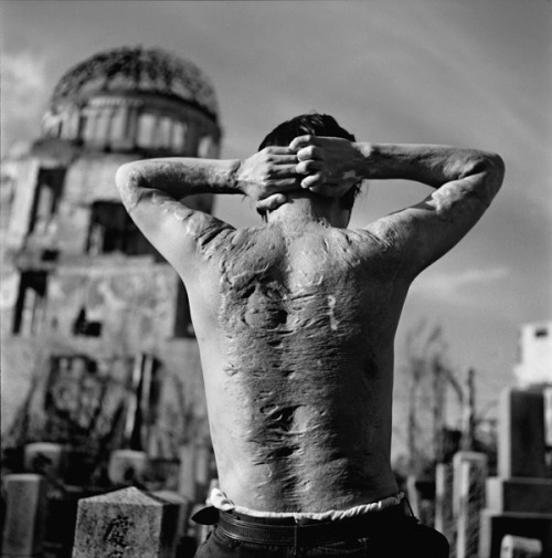The scars of a Japanese man injured during the atomic bombing of Hiroshima. Hiroshima, Japan - 1951 (Photo by Werner Bischof.)