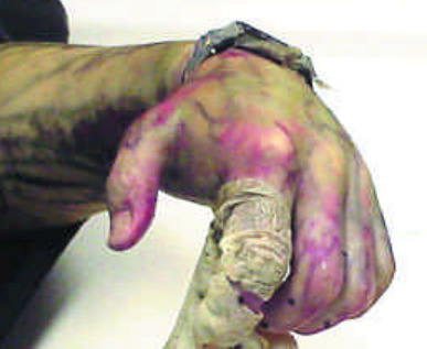 forensicsandpathology:  Skin slippage from drowning and decompositon. Skin may also slip off due to the heat.