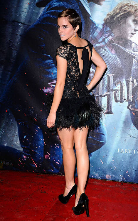 Emma Watson showing sexy legsfree nude picturesLink to photo & video: bit.ly/JhGTvX