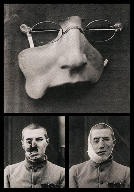midnight-gallery:  WWI facial prosthesis.