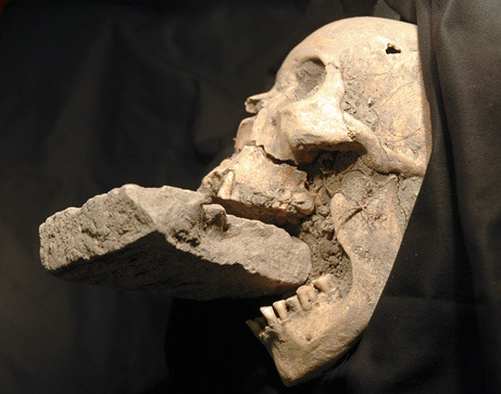 "theoddmentemporium:  Among the many medieval plague victims recently unearthed near Venice, Italy, one reportedly had never-before-seen evidence of an unusual affliction: being ""undead. The partial body and skull of the woman showed her jaw forced open by a brick (above)—an exorcism technique used on suspected vampires. Vampires were thought by some to be causes of plagues, so the superstition took root that shroud-chewing was the ""magical way"" that vampires spread pestilence. Inserting objects—such as bricks and stones—into the mouths of alleged vampires was thought to halt the disease. MORE."