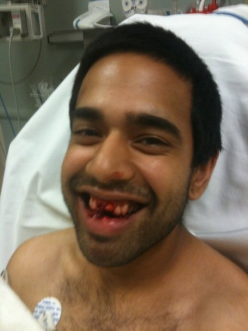 Shout out to my homie Zain, losing teeth and shit
