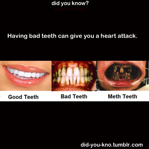 did-you-kno:  Source  Brush them Teeths!!!