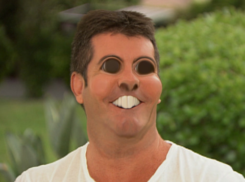 heyfunniest:  THIS BLOG. THIS!  Simon Cowell has sickle cell anemia, some serious extramedullary hematopoiesis going on there   lol