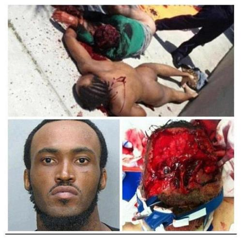 hearts-alive:  bassdropped:  The result of a man from miami chewing a mans face off.  Let just me take this time to say that the world's first zombie…..was a black man.  what. the. absolute. fuck?! i'm so traums cj!!!
