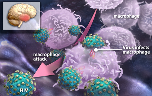 biologylair:  This image depicts leukocyte macrophages (white blood cells) swarming to attack HIV virions in the brain. The inflammation caused by this process that seems be responsible for dementia in HIV patients. Credit: Zina Deretsky, National Science Foundation