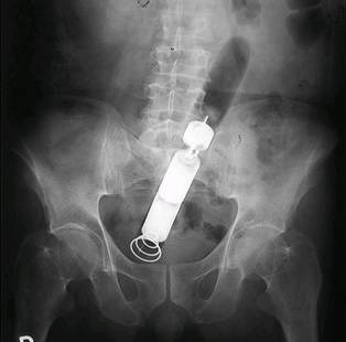 This image is very similar to my patient's x-ray.  DISCLAIMER:  This is NOT my pt's x-ray just a similar image courtesy of google images.  She had a vibrator completely in her rectum that was ON and inside her for 11 hours before coming to the ER.  She had to have it taken out in the OR.   I started to feel bad for the girl when she said her boyfriend put it there-  then my nursing/ motherly instincts kicked in and I wanted to make sure he wasn't abusing her.  This was very serious to me- I could see that she was young and fragile (even though I am only three years older than her).  She said everything was completely consensual but you could see the need for acceptance she was seeking.  She only knew the boyfriend for a month. She had old scars on her wrists from cutting herself. I wish more girls knew their own self-worth to have a voice in situations like these. I really wish her the best- if anything I know she is not going to use a vibrator in the near future.  ;)