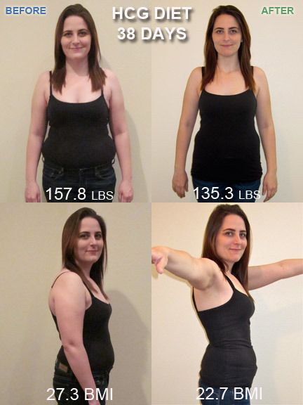 Final update after R1 P2 of the HCG diet.