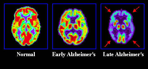 "PET images of Alzheimer's brain PET (positron emission tomography; said like ""pet""- the animals you have at home) is a type of imaging that relies on a radioactive ligand (injected into the patient) to give off a signal for a particular type of chemical.  For instance, if you want to look at a specific receptor or neurotransmitter, you could put in a competitive radioactive ligand that would bind to that receptor and it would tell you where that receptor is and how much of the neurotransmitter is binding.  It's not completely straightforward (for instance, if the signal decreases, it could mean more neurotransmitter is taking up the receptors OR it could mean there are fewer receptors there in general). This is a PET image of a healthy control and an early/late-stage AD patient's brain.  This type of PET is glucose-based, so it's just tracking overall brain metabolism.  You can see the early AD brain is already decreased in overall glucose metabolism (how much energy the brain is using), and by the late stage, it is severely decreased.  This is likely due to the severe, progressive neurodegeneration that occurs in AD. [Image Source]"