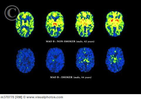 This is another PET image, but this time comparing the brain of a non-smoker to a smoker and with a different radioligand.  This time, it is not measuring glucose metabolism but instead MAO-B (monoamine oxidase type B) levels. MAO-B breaks down dopamine in the brain.  There is something about smoking that hinders the breakdown of dopamine, the feel-good neurotransmitter that is the culprit in addiction (pretty much all drugs of addiction skyrocket dopamine levels in the brain- which is not to say that dopamine itself is bad, it's actually very important, but such high levels due to a foreign compound cause that compound to be addicting).  This is probably the way that smoking is addictive, because it will increase the levels of dopamine in the brain by hindering dopaminergic breakdown.  You can see that smoking has a huge effect on MAO-B levels. [Image Source]