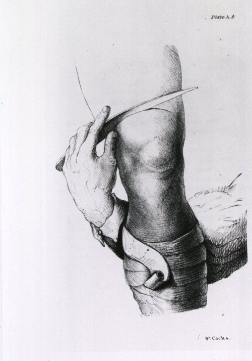 sutured-infection:  Amputation of thigh and application of retractor, from W. P. Cocks' Illustrations of Amputations, 1831