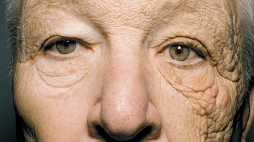 WEAR YOUR SUNSCREEN EVERY DAY! This man is 69 years old. He drove a truck for 28 years. The premature aging from sun damage to the left side of his face is extensive enough to warrant a feature in the New England Journal of Medicine. Trucker or not, don't forget your sunscreen.