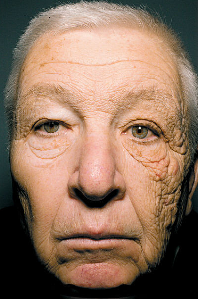 Best argument for sunscreen EVER Here is a photo of a 69-year-old man who drove a delivery truck for 28 years. This—which is called Unilateral Dermatoheliosis—is the result of exposing onlyhalfof your face to direct sunlight for nearly three decades. Source: The New England Journal of Medicine Dangerous Minds Via reddit