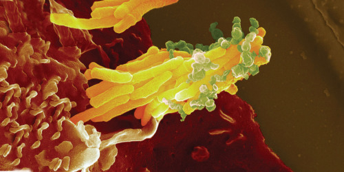 The enlarged image of Mycobacterium tuberculosis, which causes Tuberculosis. In this photo, it is infecting a blood cell.