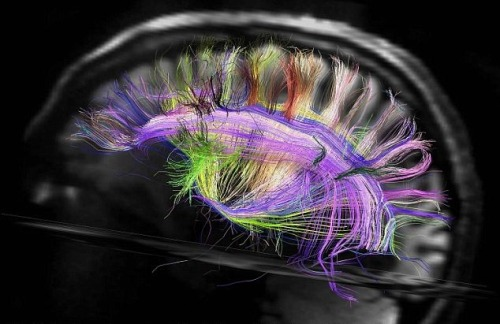 notalwaysred:  Harvard scientists map the inside of the human brain as a magnetic resonance scanner builds the first 3D interior maps of the brain