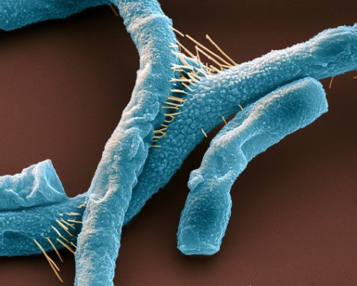 fuckyeahmolecularbiology:  Scanning electron micrograph of Bacillus anthracis, commonly known as anthrax. These rod-shaped, Gram-positive, spore-forming bacteria can infect the skin (cutaneous anthrax), causing raised itchy lesions, the lungs (pulmonary anthrax), which is fatal unless treated quickly, and the digestive system (gastrointestinal anthrax), causing vomiting of blood and severe diarrhoea. All forms can be fatal if left untreated. Image Source: Science Photo Library.