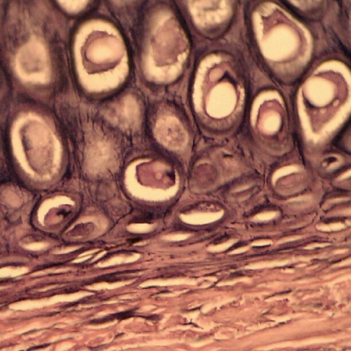 Elastic Cartilage (400x) #anatomy #microscope #lacunae #nofilter (Taken with instagram)