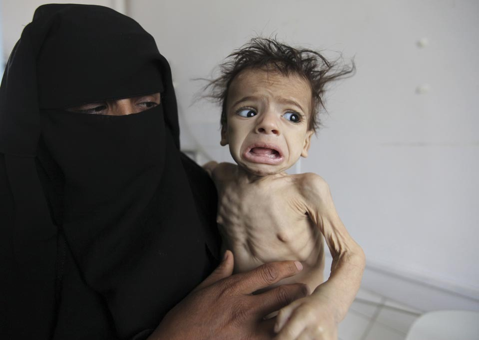 inothernews:  A woman held her child at a feeding center at al-Sabyeen hospital in San'a, Yemen, Monday. (Photo: Mohamed al-Sayaghi / Reuters via The Wall Street Journal) Heartbreaking.