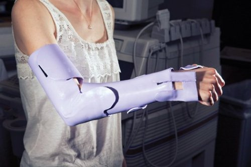 Modular Cast Accelerates Healing Process  In 2009, during a biomedical-engineering course, the professor challenged the students to solve a problem that was important to them. They set about finding a way to reduce the harm that casts cause. After considering several ideas, they decided to create a modular cast. The device would secure the entire arm like a conventional cast, but a doctor could disassemble it a piece at a time as the bone healed, freeing up the arm to make specific movements one by one to build flexibility and increase blood flow to muscles—and reduce the length of physical therapy after the cast is removed by as much as half.  (via 2012 Invention Awards: A Recovery-Accelerating Modular Cast | Popular Science)