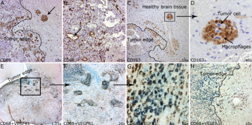 Figure 2 from 'The syngeneic BT4C rat malignant glioma is a valuable model to study myelomonocytic cells in tumors' Published in Cancer Growth and Metastasis