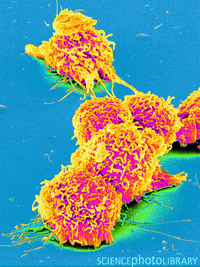 Cancer cells, coloured scanning electron micrograph (SEM). Cancerous (malignant) cells divide rapidly and uncontrollably and are able to invade and destroy surrounding tissue. These cells are showing numerous blebs (lumps) and microvilli (hair-like structures), which are characteristic of cancer cells.  Credit: SUSUMU NISHINAGA/SCIENCE PHOTO LIBRARY