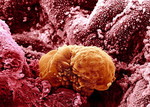 medicalschool:  A human embryo implanting, six days after fertilization.  Implantación de un embrión humano, seis días después de la fecundación.