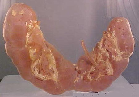 Horseshoe Kidneys