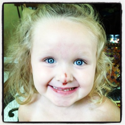 Somebody's got a booboo and still has the sweetest smile! (Taken with Instagram)