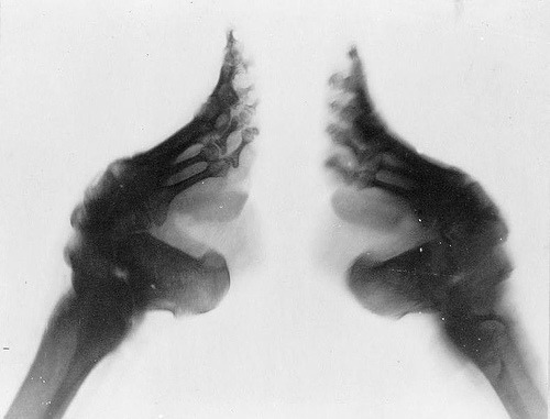 theoddmentemporium:  An x-ray of a Chinese woman's feet after being bound. The Chinese practice of footbinding, popular since medieval times, was banned only in 1911. Young girls' feet were wrapped in bandages to prevent them from growing longer than 4 inches. By age 3, four toes on each foot would break, often leading to infection, paralysis and atrophy. Some elderly Chinese women today still show disabilities.
