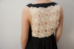 the doily dress