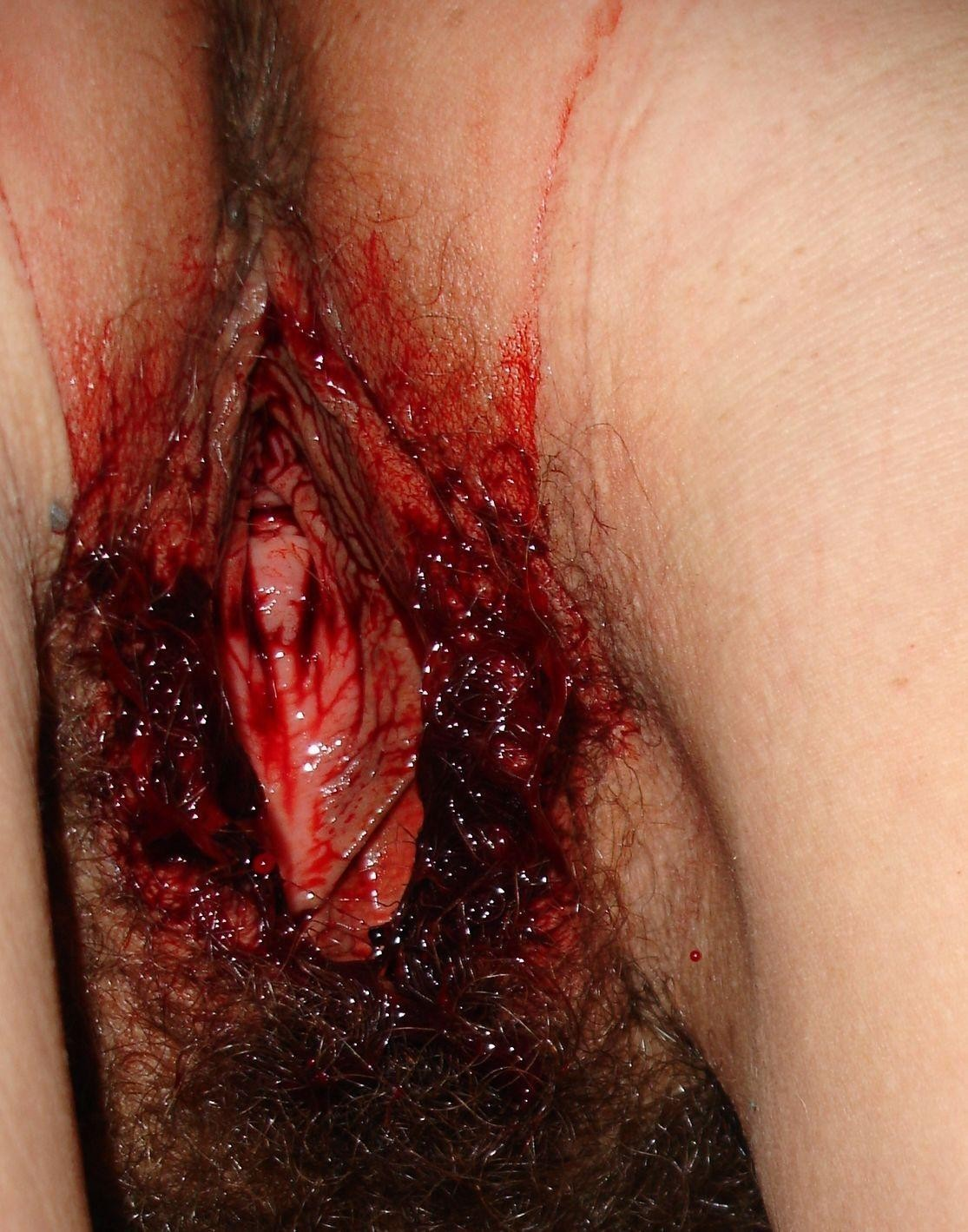 bloody pussy images